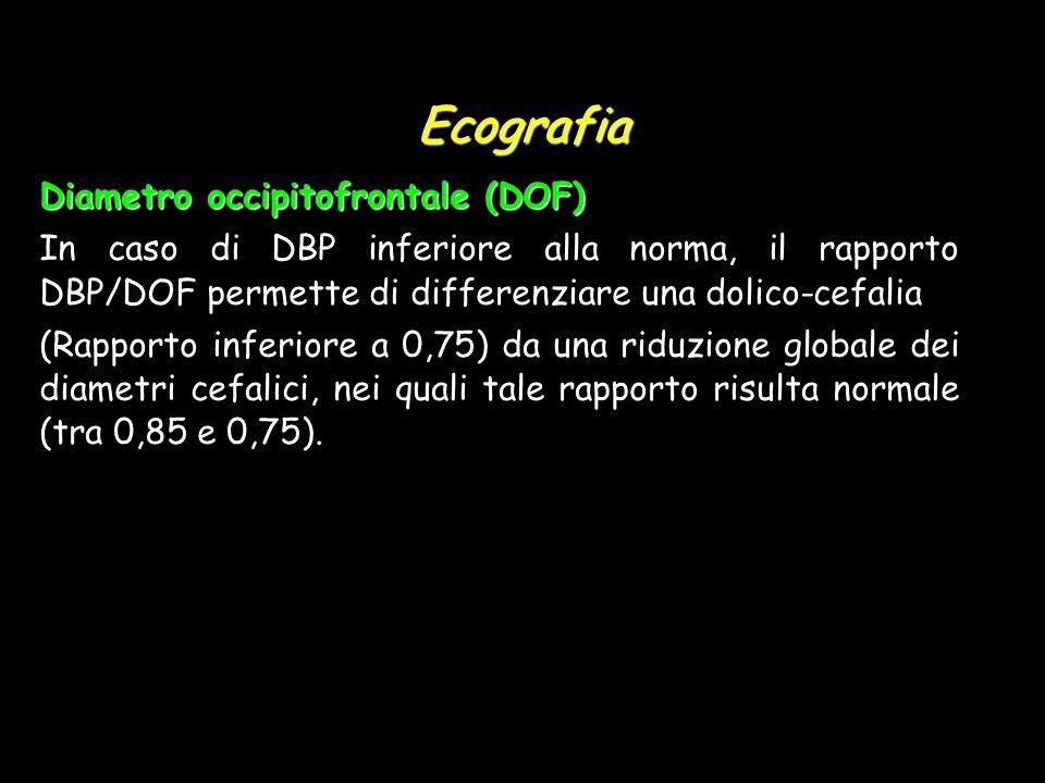 Ecografia Diametro occipitofrontale (DOF)
