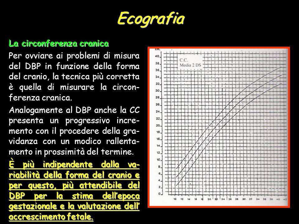 Ecografia La circonferenza cranica