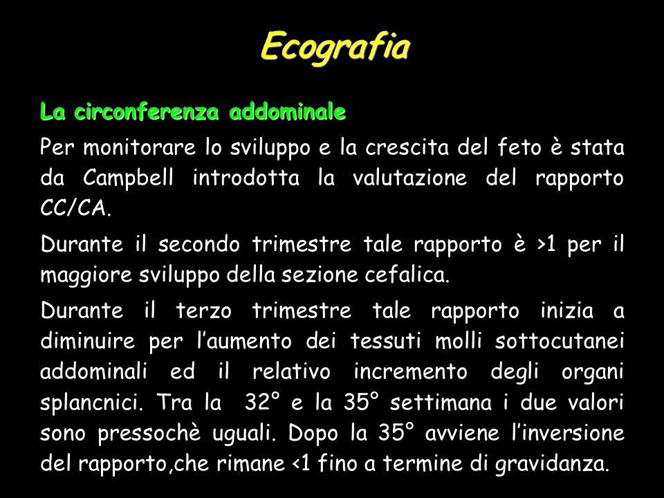 Ecografia La circonferenza addominale