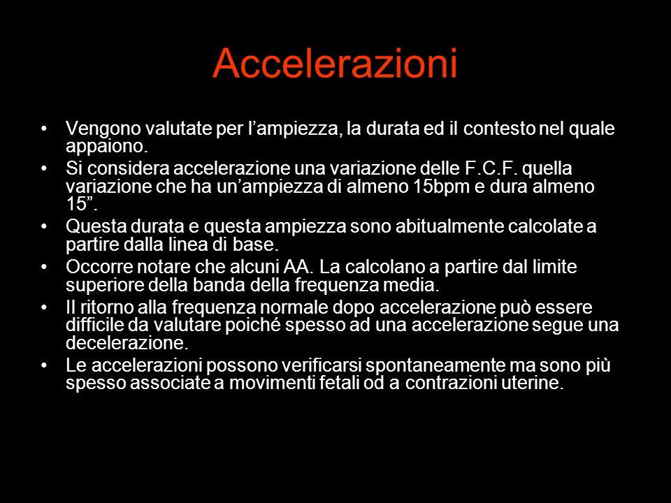 Accelerazioni Vengono valutate per l'ampiezza, la durata ed il contesto nel quale appaiono.