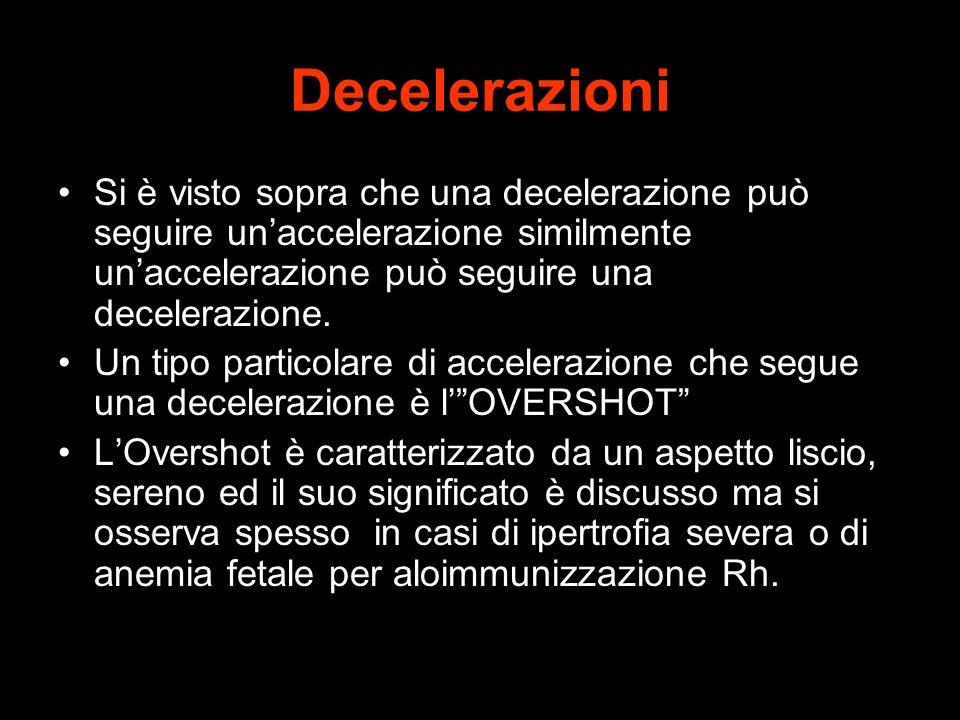 Decelerazioni Si è visto sopra che una decelerazione può seguire un'accelerazione similmente un'accelerazione può seguire una decelerazione.