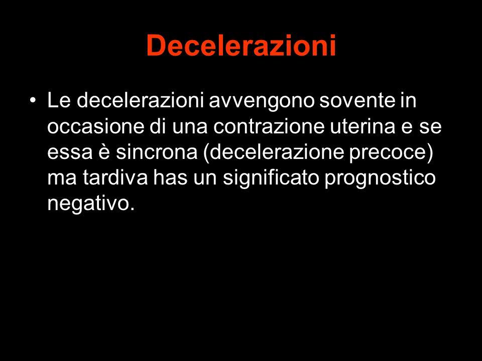 Decelerazioni
