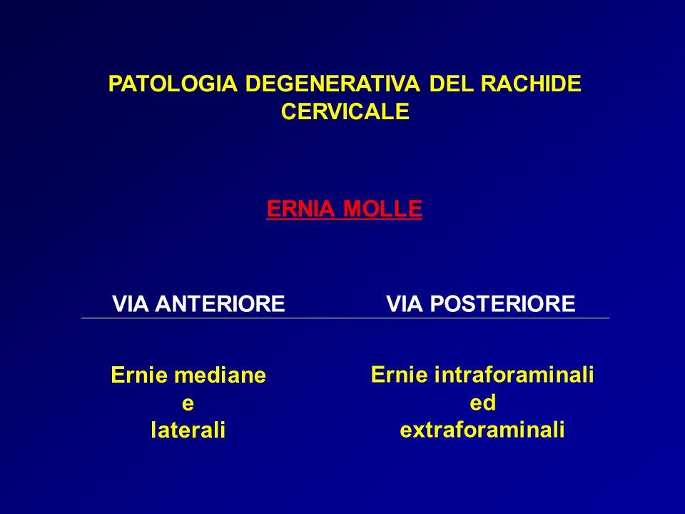 PATOLOGIA DEGENERATIVA DEL RACHIDE Ernie intraforaminali