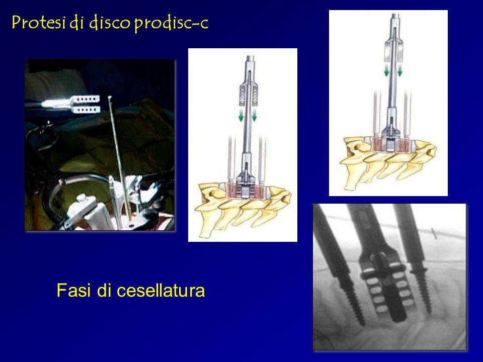 Protesi di disco prodisc-c