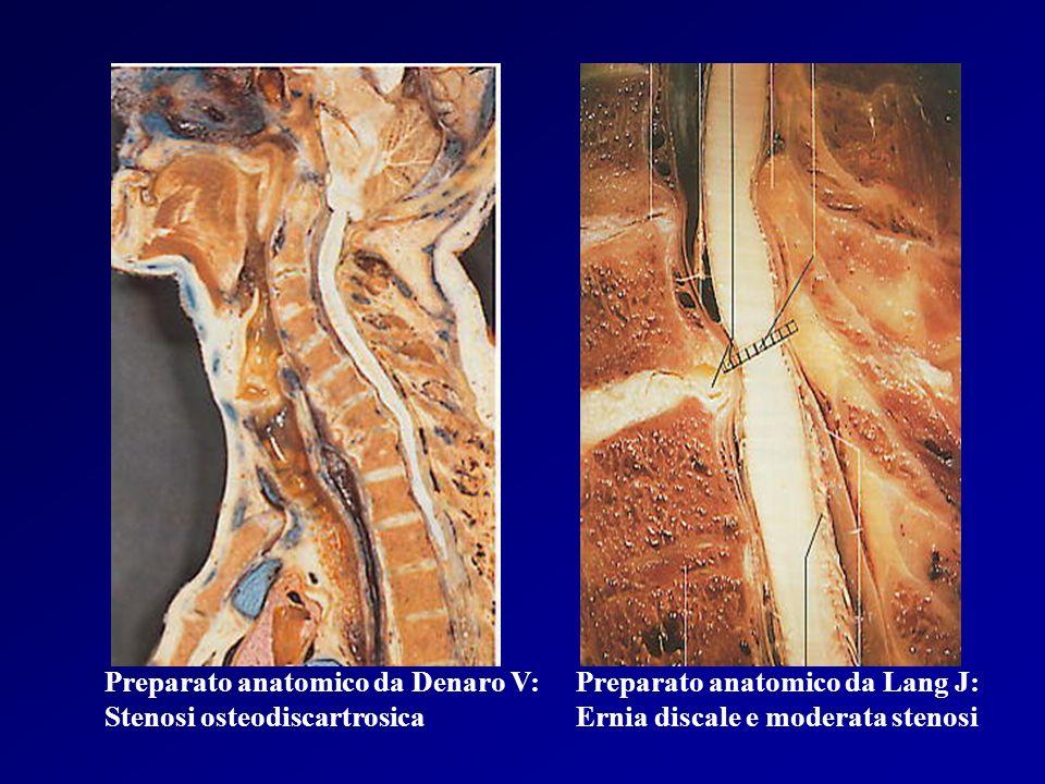 Preparato anatomico da Denaro V: