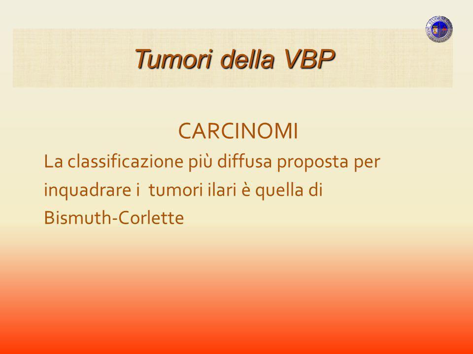 Tumori della VBP CARCINOMI La classificazione più diffusa proposta per