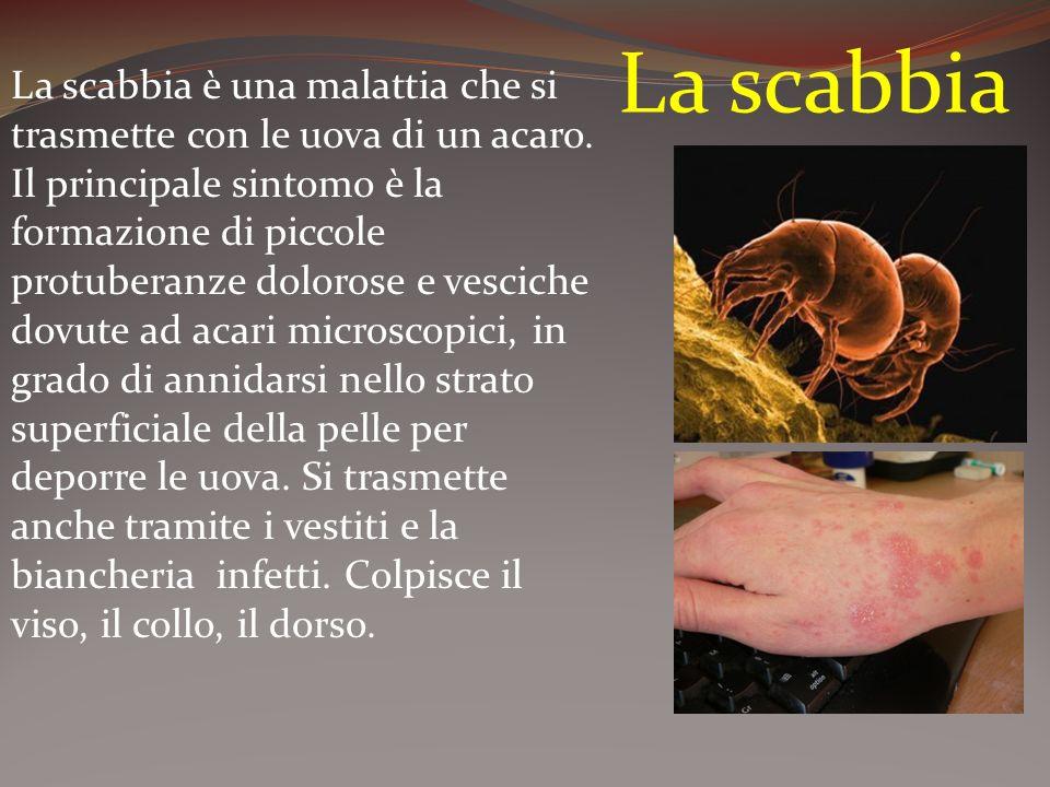 La scabbia La scabbia è una malattia che si trasmette con le uova di un acaro.