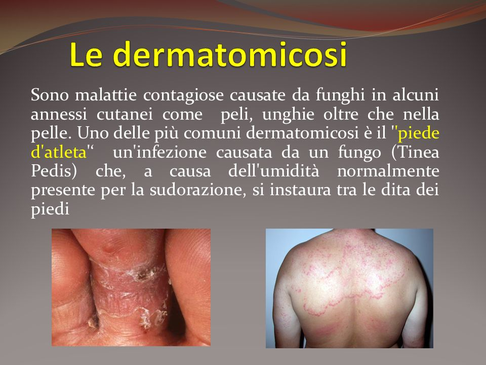 Le dermatomicosi