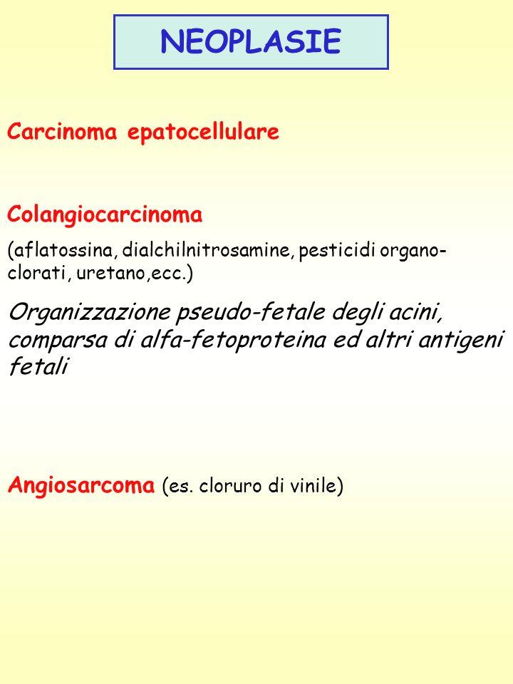 NEOPLASIE Carcinoma epatocellulare Colangiocarcinoma