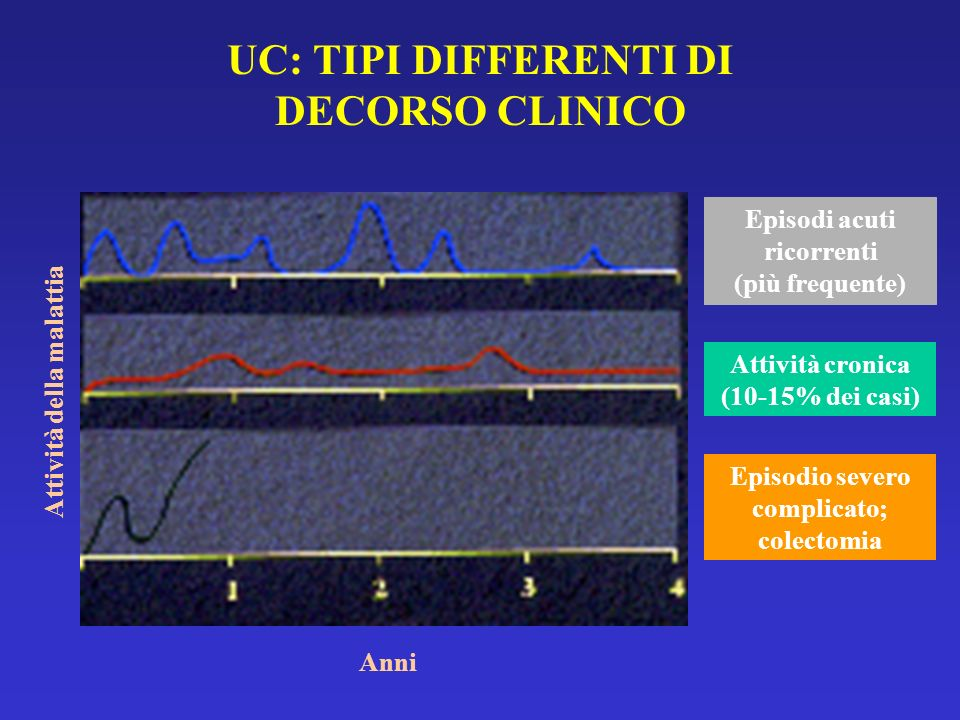 UC: TIPI DIFFERENTI DI DECORSO CLINICO