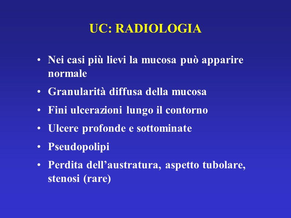 UC: RADIOLOGIA Nei casi più lievi la mucosa può apparire normale