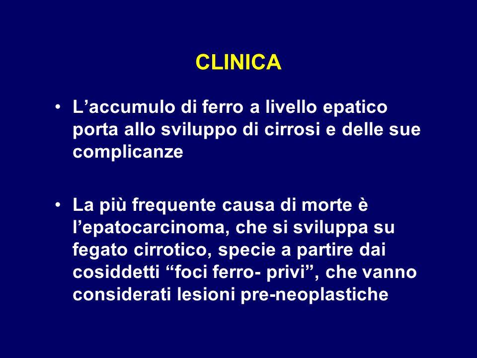 CLINICA L'accumulo di ferro a livello epatico porta allo sviluppo di cirrosi e delle sue complicanze.