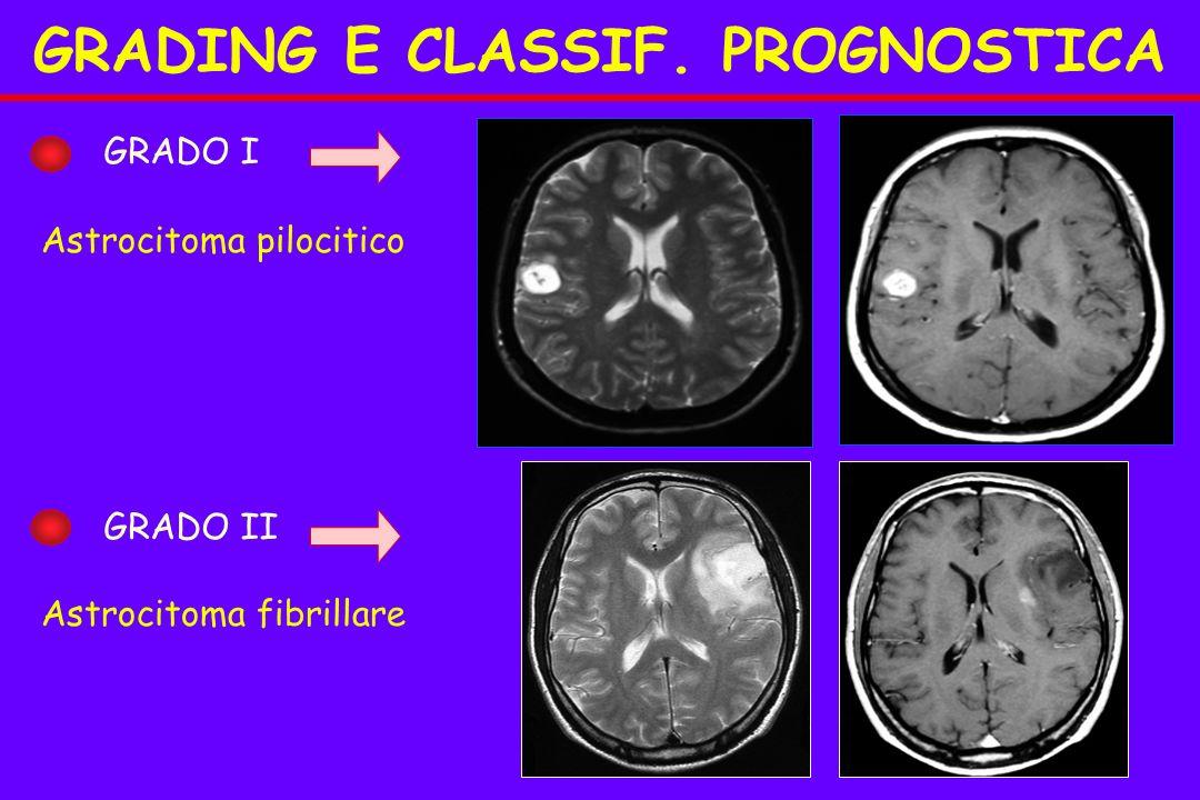 GRADING E CLASSIF. PROGNOSTICA