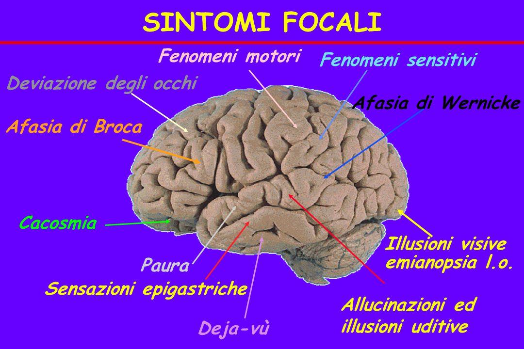 SINTOMI FOCALI Fenomeni motori Fenomeni sensitivi