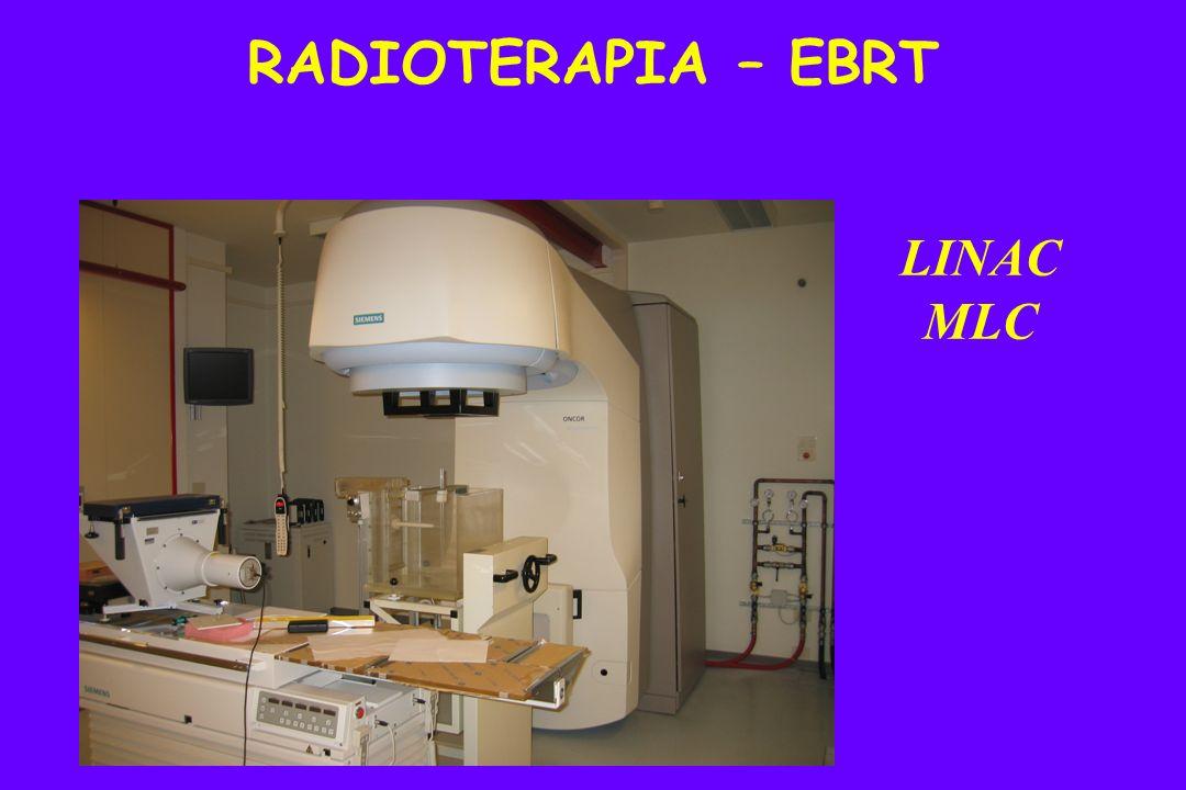RADIOTERAPIA – EBRT LINAC MLC