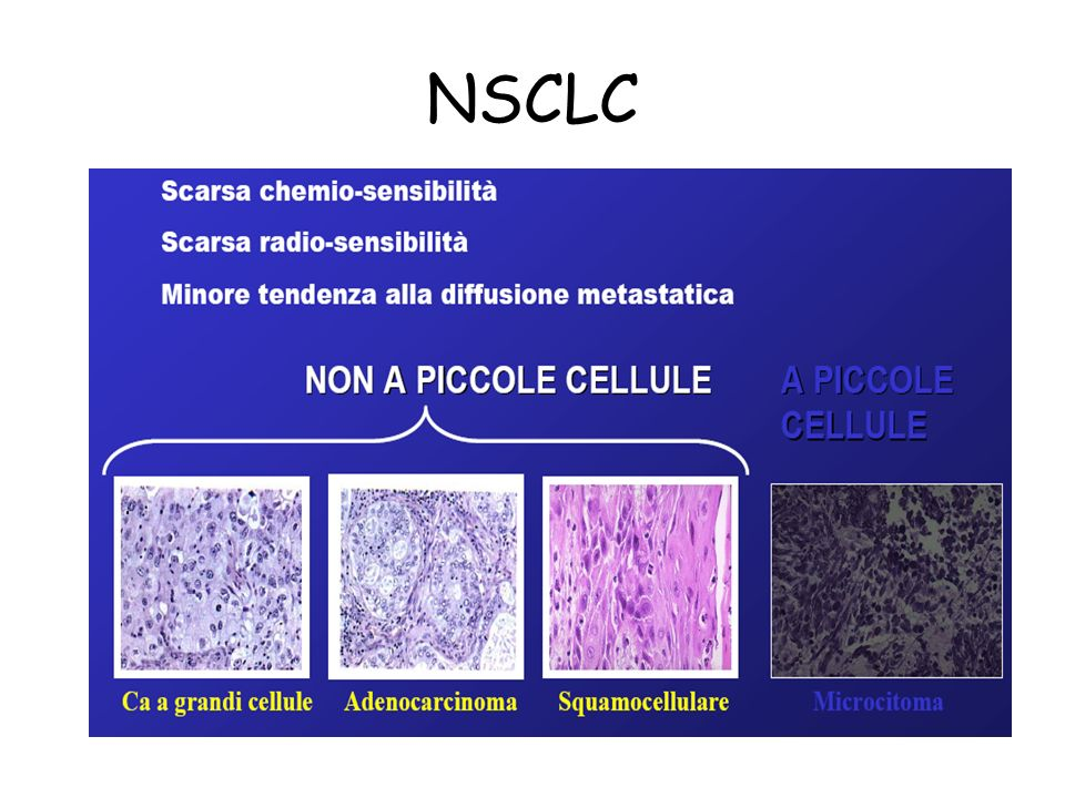 NSCLC