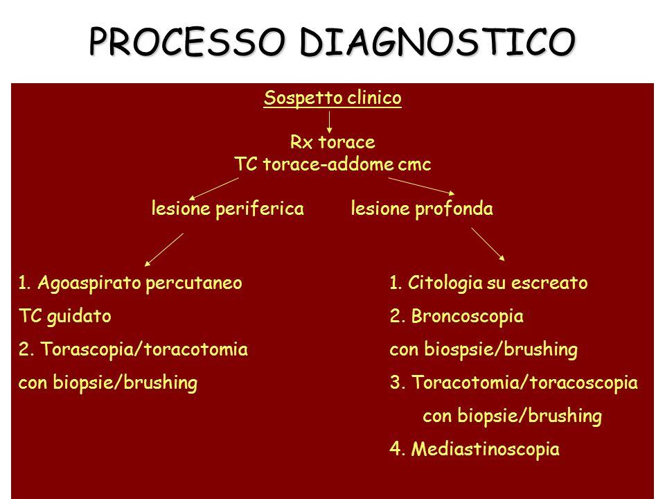 PROCESSO DIAGNOSTICO Sospetto clinico Rx torace TC torace-addome cmc