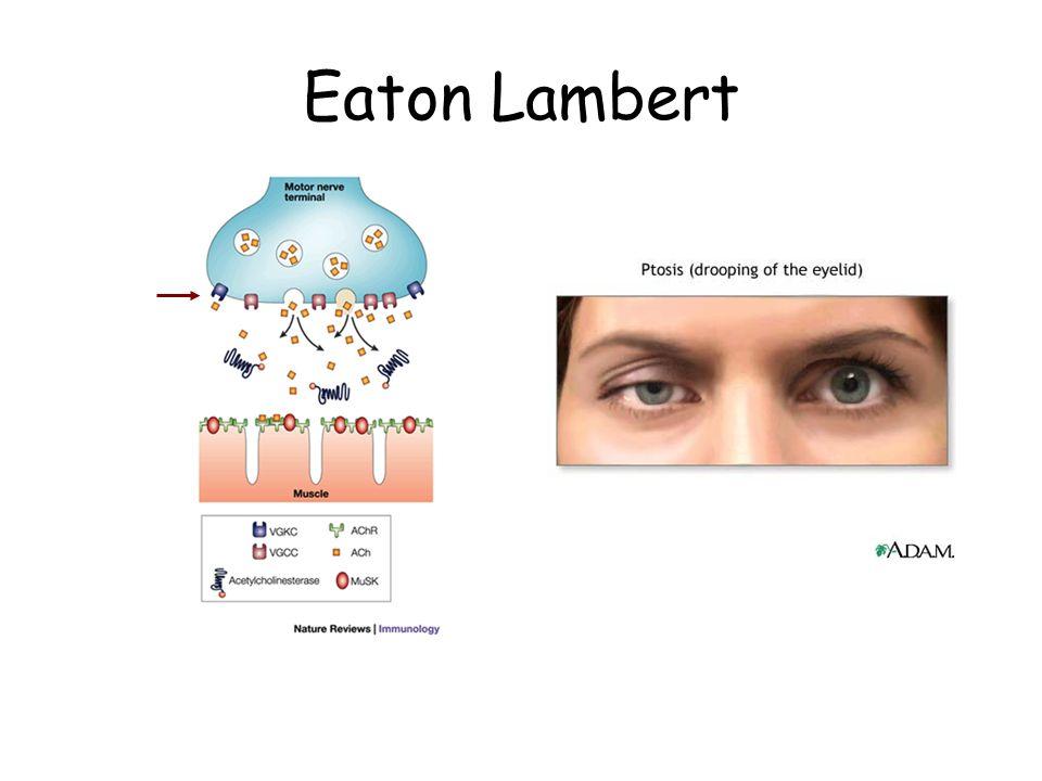 Eaton Lambert