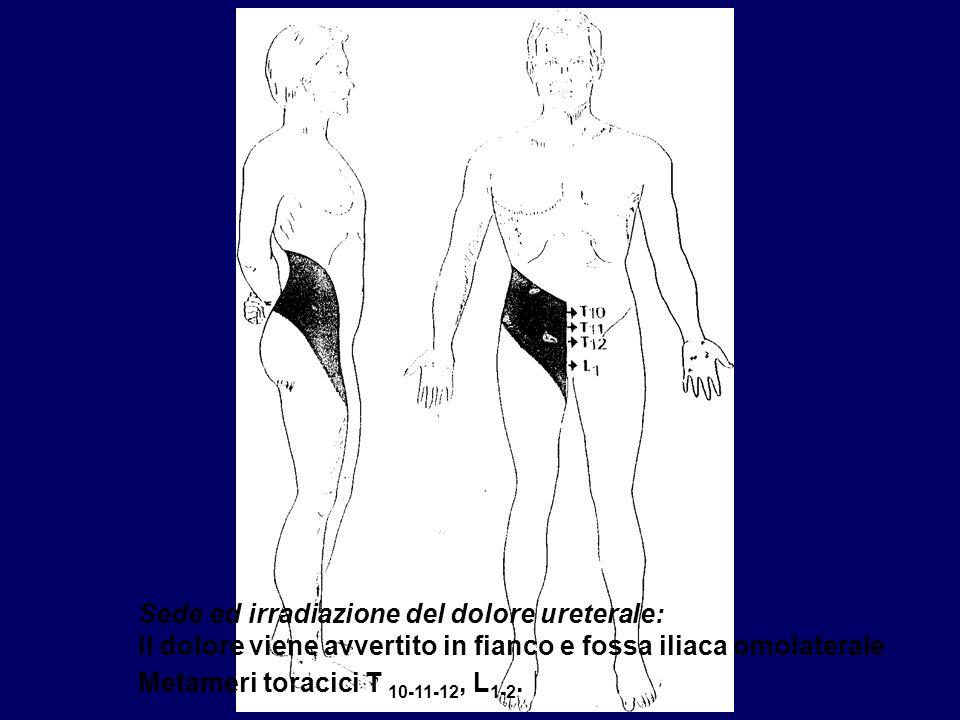 Sede ed irradiazione del dolore ureterale: Il dolore viene avvertito in fianco e fossa iliaca omolaterale Metameri toracici T 10-11-12, L1-2.
