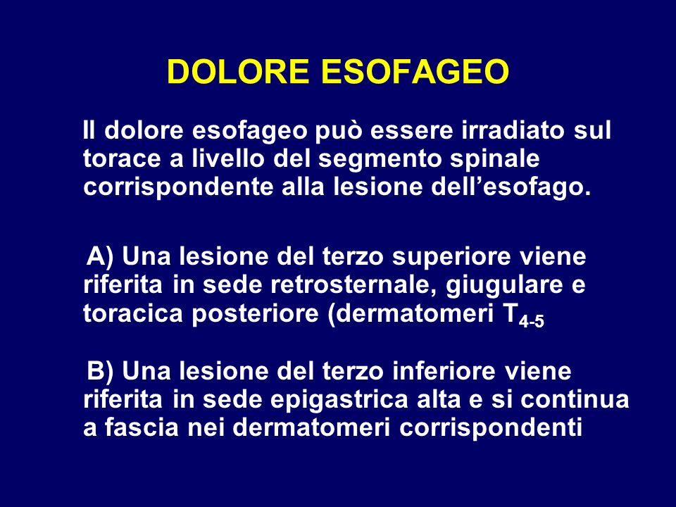DOLORE ESOFAGEO Il dolore esofageo può essere irradiato sul torace a livello del segmento spinale corrispondente alla lesione dell'esofago.