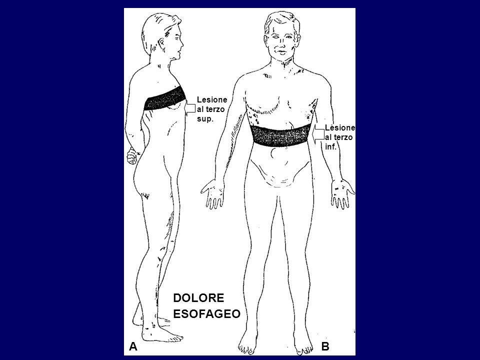 Lesione al terzo sup. Lesione al terzo inf. DOLORE ESOFAGEO A B