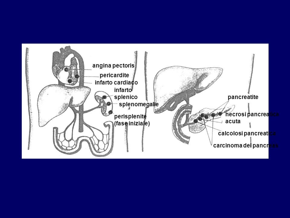 angina pectoris pericardite. infarto cardiaco. infarto splenico. pancreatite. splenomegalie. necrosi pancreatica acuta.