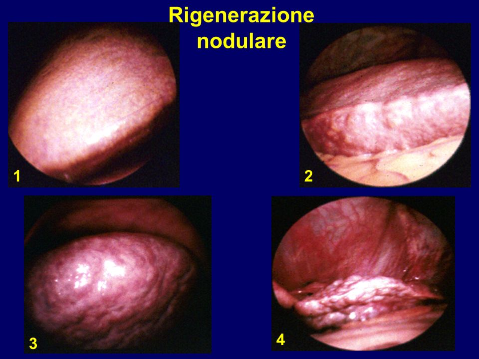 Rigenerazione nodulare