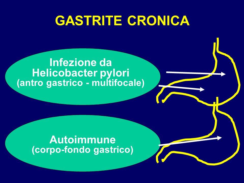 GASTRITE CRONICA Infezione da Helicobacter pylori (antro gastrico - multifocale)