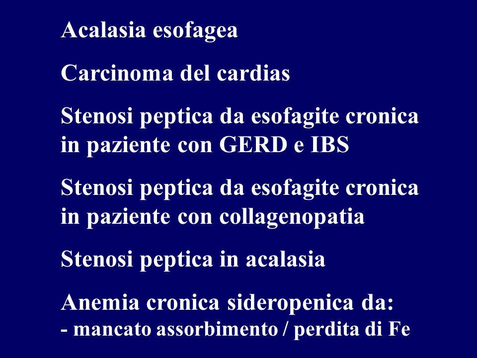 Acalasia esofagea Carcinoma del cardias. Stenosi peptica da esofagite cronica in paziente con GERD e IBS.