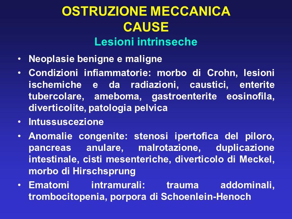 OSTRUZIONE MECCANICA CAUSE Lesioni intrinseche
