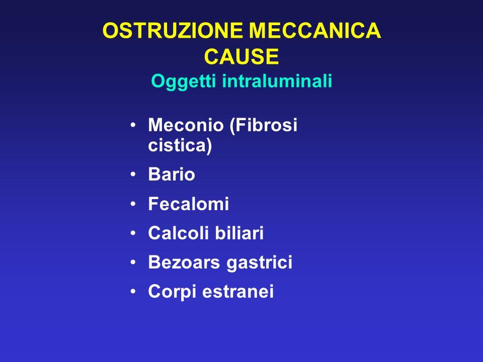 OSTRUZIONE MECCANICA CAUSE Oggetti intraluminali