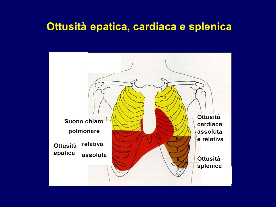 Ottusità epatica, cardiaca e splenica