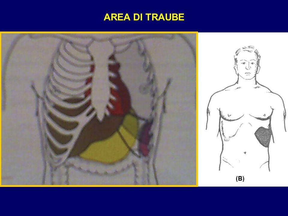 AREA DI TRAUBE AREA DI TRAUBE (A) (B)