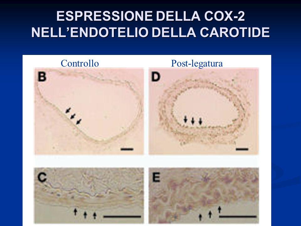 ESPRESSIONE DELLA COX-2 NELL'ENDOTELIO DELLA CAROTIDE
