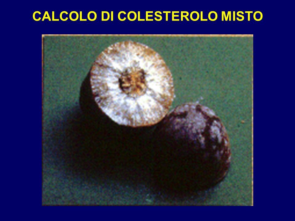 CALCOLO DI COLESTEROLO MISTO