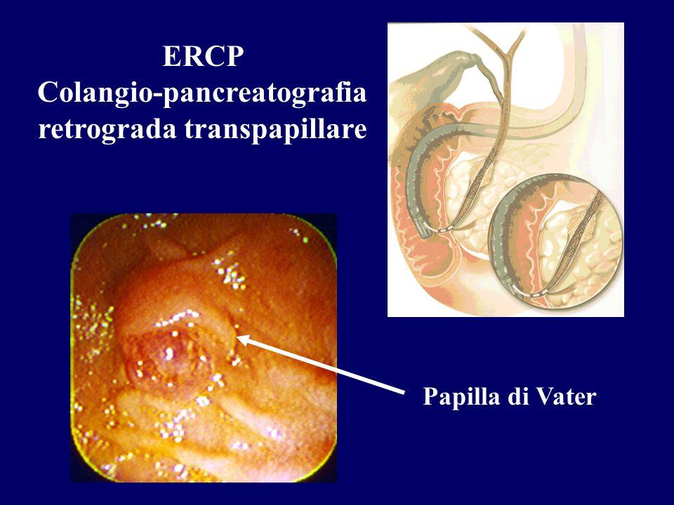 ERCP Colangio-pancreatografia retrograda transpapillare