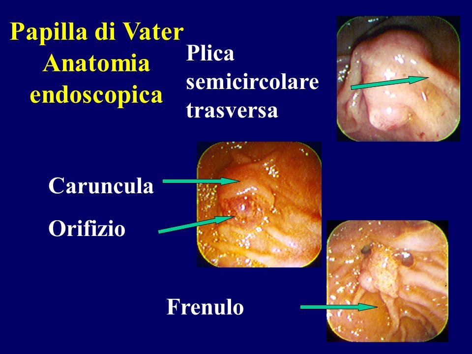 Papilla di Vater Anatomia endoscopica