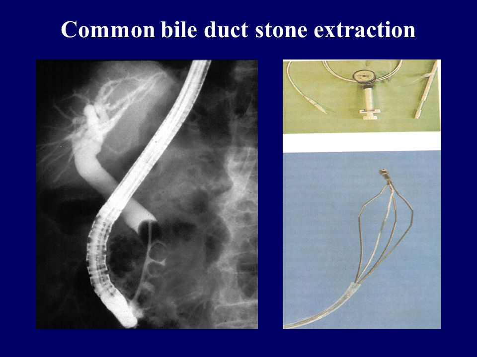 Common bile duct stone extraction