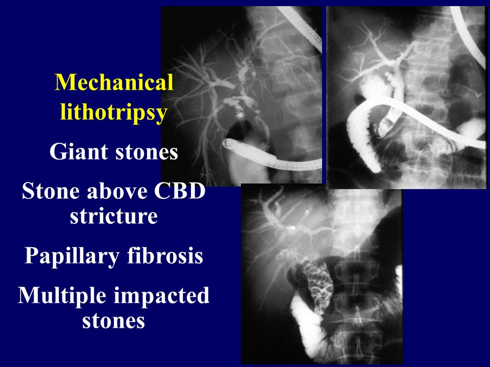 Mechanical lithotripsy Giant stones Stone above CBD stricture