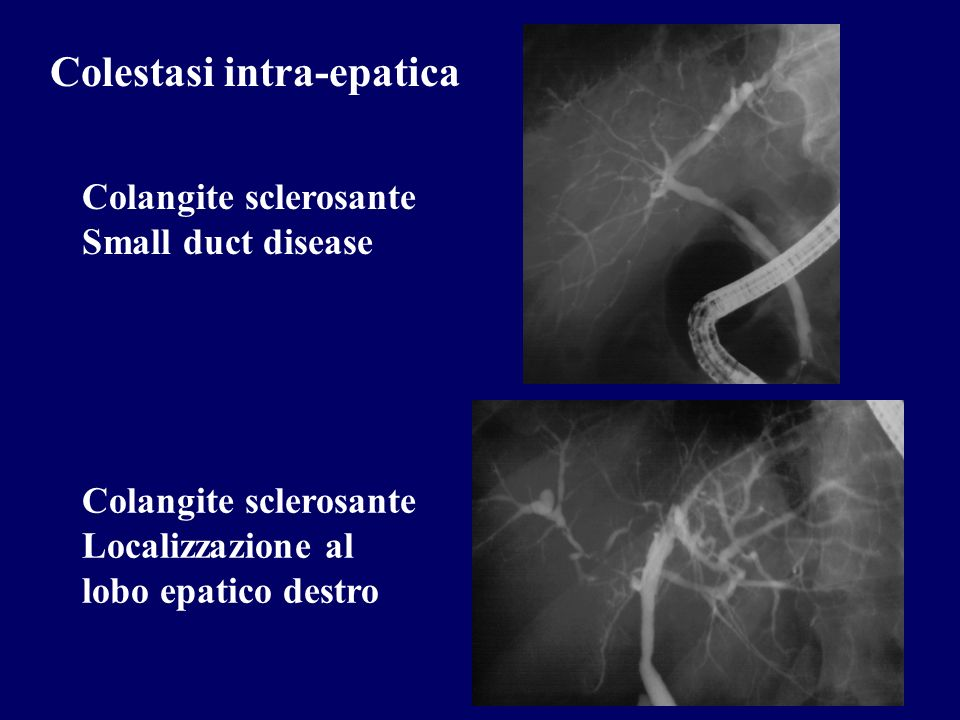 Colestasi intra-epatica