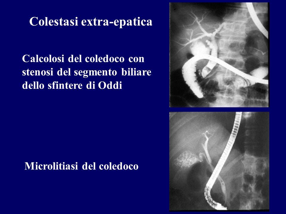 Colestasi extra-epatica