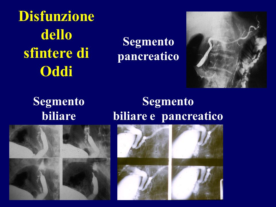 Disfunzione dello sfintere di Oddi Segmento biliare e pancreatico
