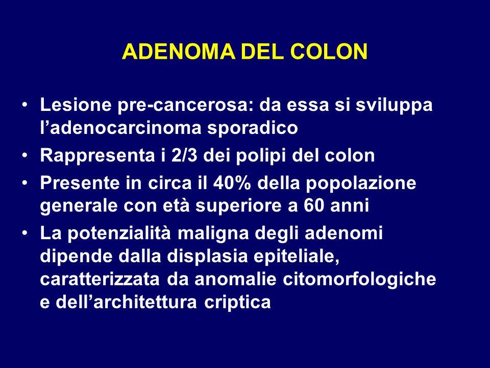 ADENOMA DEL COLON Lesione pre-cancerosa: da essa si sviluppa l'adenocarcinoma sporadico. Rappresenta i 2/3 dei polipi del colon.