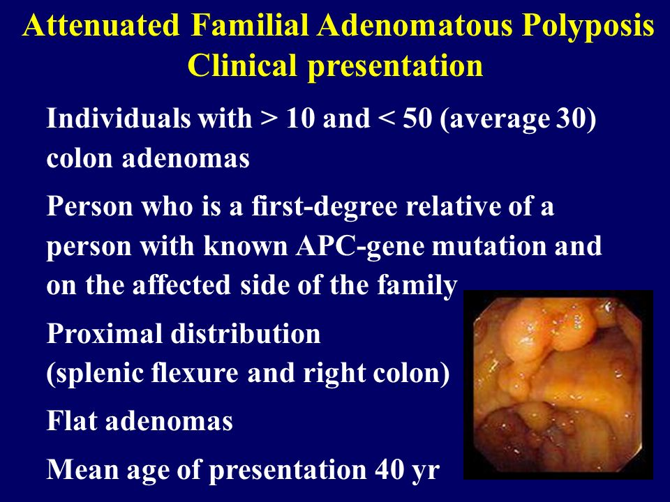 Attenuated Familial Adenomatous Polyposis Clinical presentation