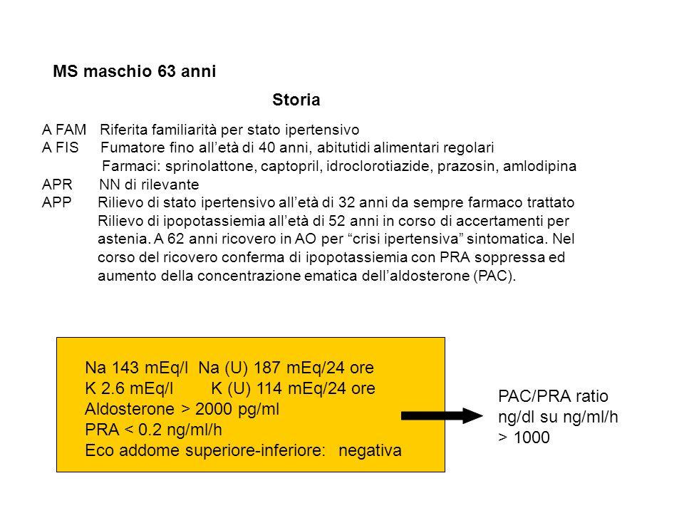 Aldosterone > 2000 pg/ml PRA < 0.2 ng/ml/h