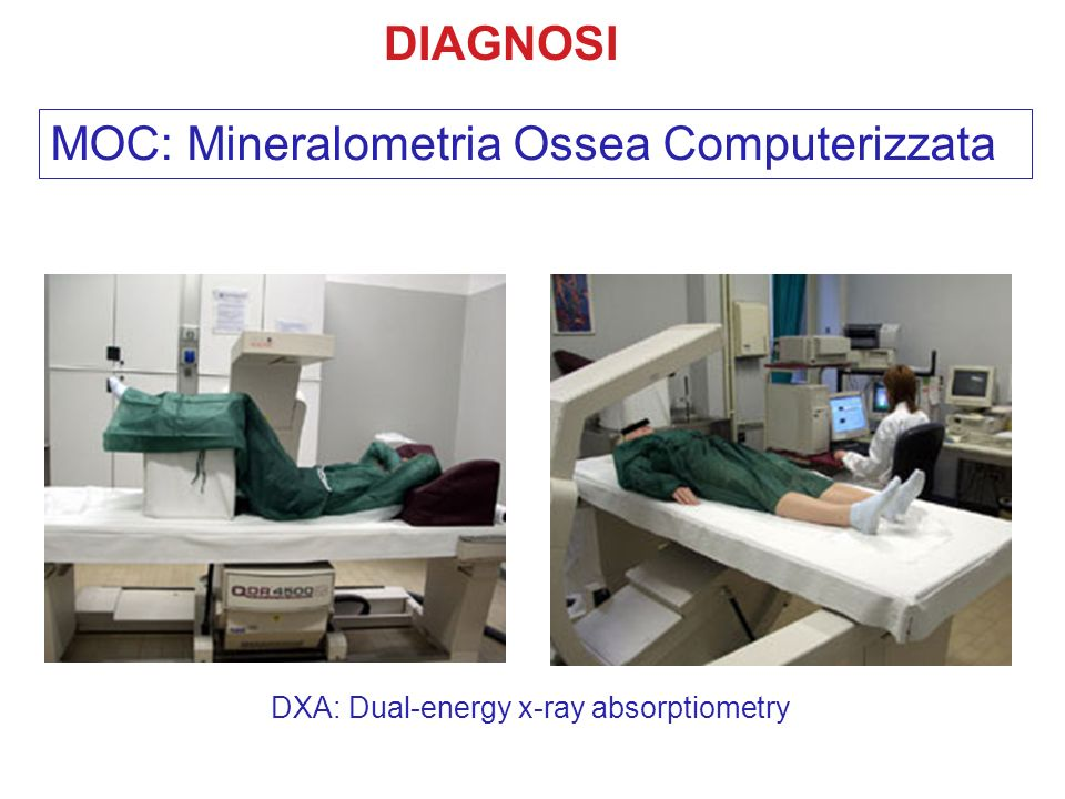 MOC: Mineralometria Ossea Computerizzata