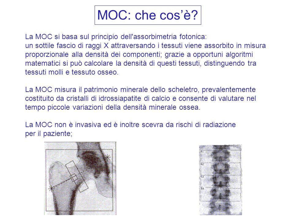 MOC: che cos'è La MOC si basa sul principio dell assorbimetria fotonica:
