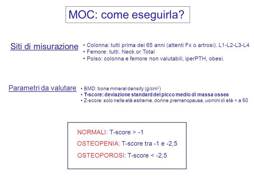 MOC: come eseguirla Siti di misurazione Parametri da valutare