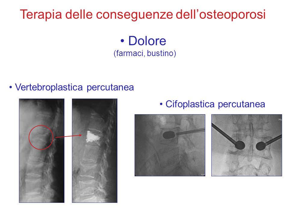 Terapia delle conseguenze dell'osteoporosi