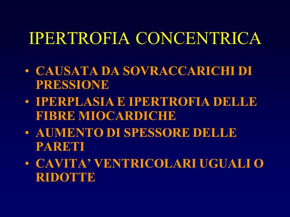 IPERTROFIA CONCENTRICA